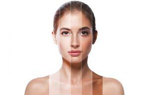 Phân loại sắc tố da